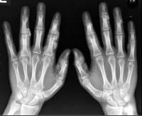 Jak se jmenuje vědec, jehož objev záření umožnil vznik zařízení na vyšetřování v lékařství, zejména v orthopedii na obrázku č.1? Tento objev se dále využívá i v průmyslu a bezpečnostních zařízeních. (náhled)